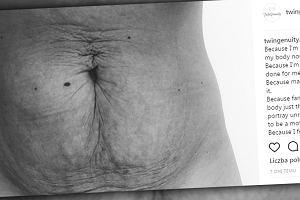 Urodziła trójkę dzieci w 11 miesięcy i pokazała swój brzuch. Zrobiła to z ważnego powodu