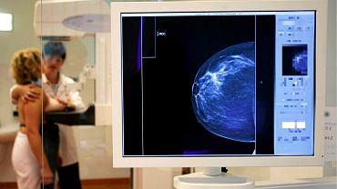 Pandemia uderzyła w zdrowie kobiet. Drastyczny spadek liczby wykonywanych cytologii i mammografii