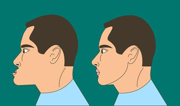 Progenia (wysunięta żuchwa): przyczyny, leczenie