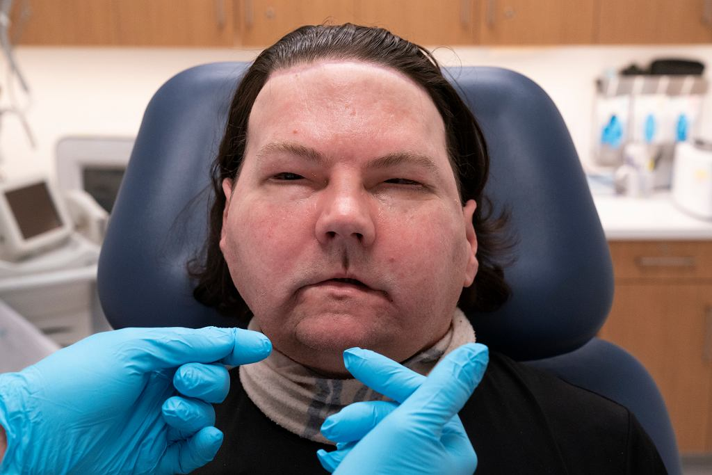 USA. 'Medyczny cud' w szpitalu w Nowym Jorku. Udany przeszczep twarzy i dwóch rąk