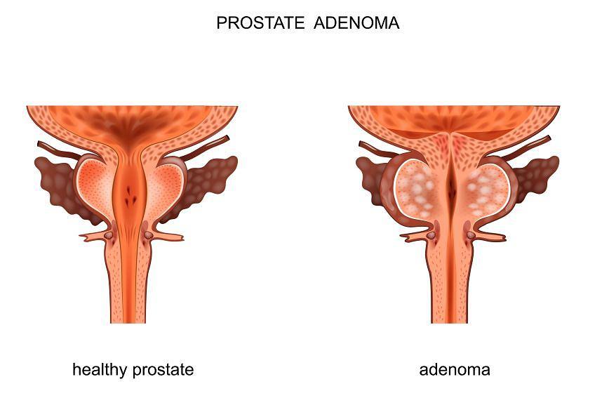 Prawidłowy gruczoł prostaty i gruczolak (adenoma) prostaty