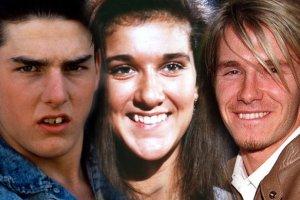Tom Cruise wyprostował zęby, to wiedzą wszyscy. A kto jeszcze poprawiał sobie uśmiech?