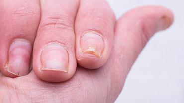 Onycholiza (choroba płytek paznokci)