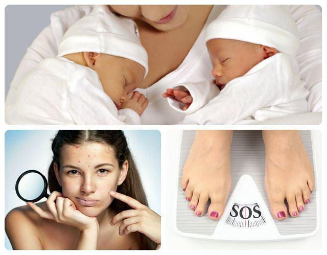 Wywołują trądzik, problemy z wagą i sprzyjają ciążom bliźniaczym, czyli mity o hormonach w antykoncepcji