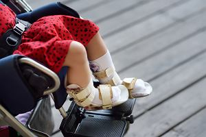 Rdzeniowy zanik mięśni - przyczyny, objawy, leczenie