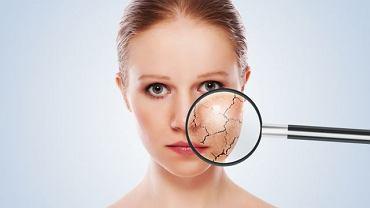 W przypadku cery naczynkowej warto skonsultować się z dermatologiem w celu ustalenia, jak o nią dbać, by pajączków było mniej