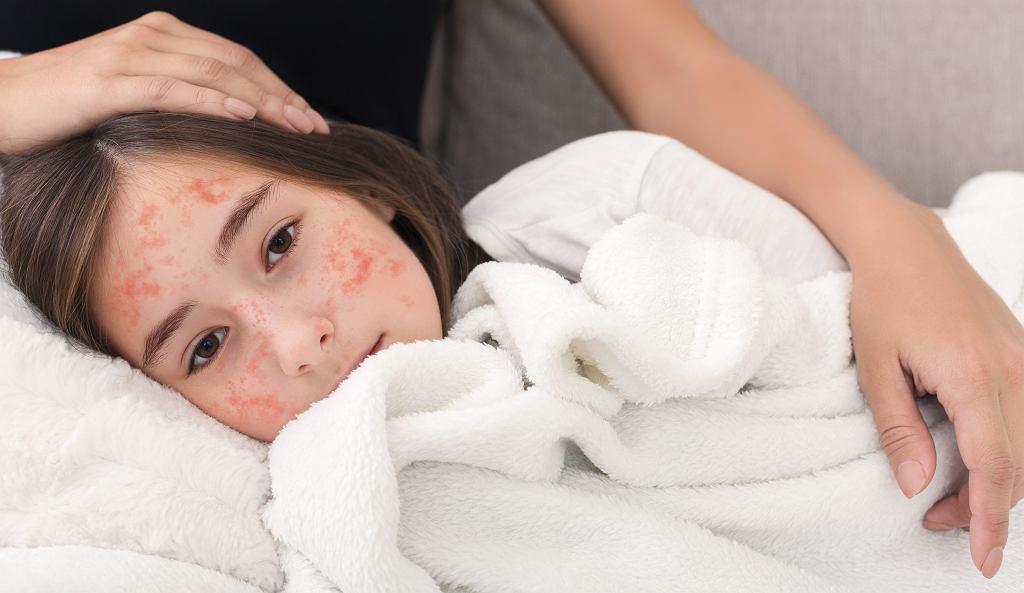 Objawy odry to przede wszystkim wysypka i gorączka, które występują zarówno u dzieci, jak i dorosłych. Zdjęcie ilustracyjne