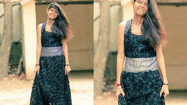 Bolesne blizny na całej twarzy, często też na ciele, i stygmat do końca życia. W Indiach co roku ponad tysiąc kobiet pada ofiarą ataków kwasem. Skryte za chustami żyją latami w cieniu. 22-letnia Rupa rzuciła wyzwanie oprawcom i społeczeństwu. Zaprojektowała ubrania, które sfotografowano w niezwykłej sesji. Dlaczego niezwykłej? Bo te modelki do tej pory nie pokazywały twarzy.