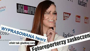 Wszystkie media, które wspomniały o ostatnich zdjęciach Dominiki Gawędy, skupiły się na twarzy wokalistki Blue Cafe. Czy wygląda inaczej, jak twierdzą nagłówki? Przyjrzyjmy się.