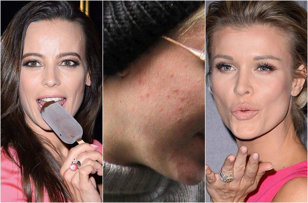 Perfekcyjny makijaż i nieskazitelny wygląd - to, jak gwiazdy prezentują się na czerwonym dywanie często każe nam myśleć, że one po prostu urodziły się z perfekcyjną cerą. Jednak gdy przyjrzymy im się bliżej, okazuje się, że one też borykają się z niedoskonałościami skóry. Zobaczcie, kto ma trądzik czy wypryski.