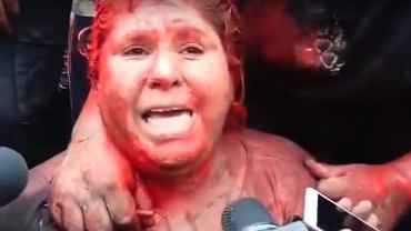 Patricia Arce (YouTube/El Pitazo)