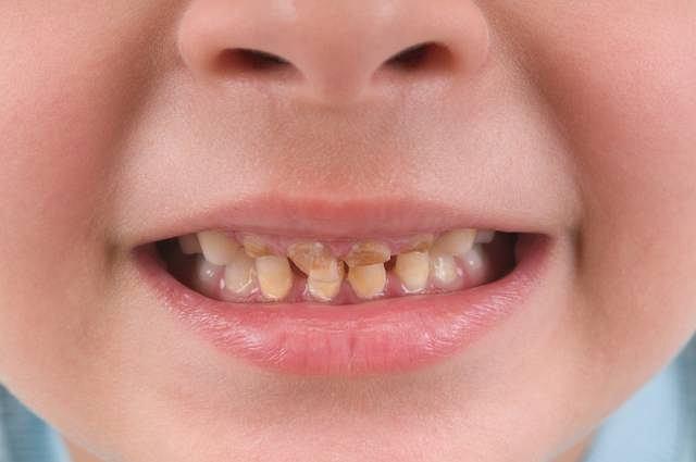Bruksizm, czyli zgrzytanie zębami dotyka przede wszystkim dzieci i bardzo często prowadzi do poważnych wad zgryzu