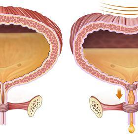 jakie są objawy przerostu prostaty