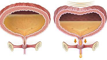 Mikcja, czyli oddawanie moczu, to proces usunięcia zgromadzonej w pęcherzu moczowym uryny.