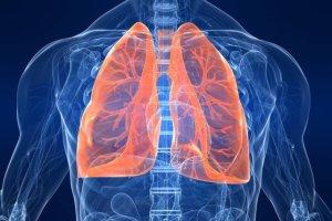 Odma opłucnowa - przyczyny, objawy, leczenie