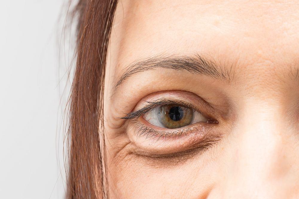 Karboksyterapia to także dobry sposób na pozbycie się worków po oczami, które dodają lat i sprawiają, że kobieta jest mało atrakcyjna i wygląda na zmęczoną