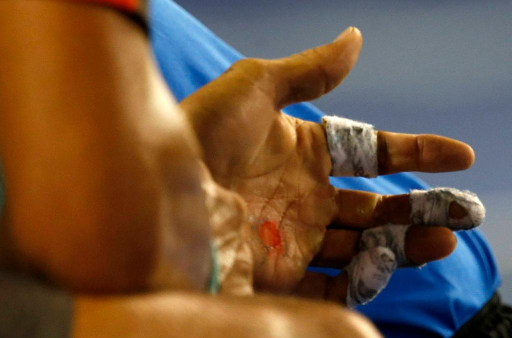 An injury is seen on the hand of Rafael Nadal of Spain during his mens singles semi-final match against Roger Federer of Switzerland at the Australian Open 2014 tennis tournament in Melbourne