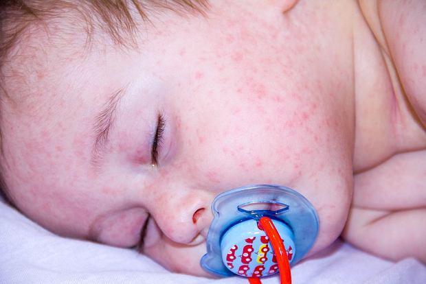 Wysypka u dziecka - o czym może świadczyć i kiedy konieczny jest kontakt z lekarzem