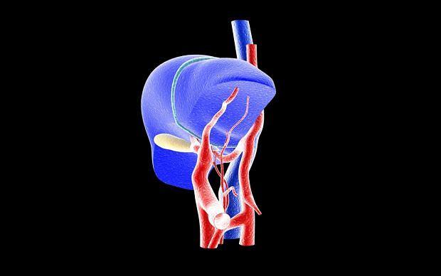 Cholestaza to specyficzny rodzaj zapalenia wątroby