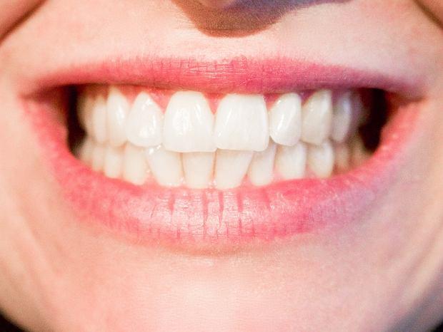 Wybiela zęby. Z wody utlenionej i sody oczyszczonej przygotuj pastę. Szoruj nią zęby przez kilka dni, a Twoje zęby będą białe, jak nigdy dotąd. Ponadto woda utleniona rozpuści kamień nazębny.