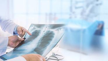 Bakteryjne zapalenie płuc
