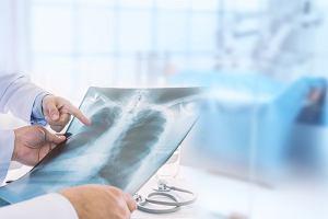 Bakteryjne zapalenie płuc: jak je rozpoznać. Leczenie bakteryjnego zapalenia płuc