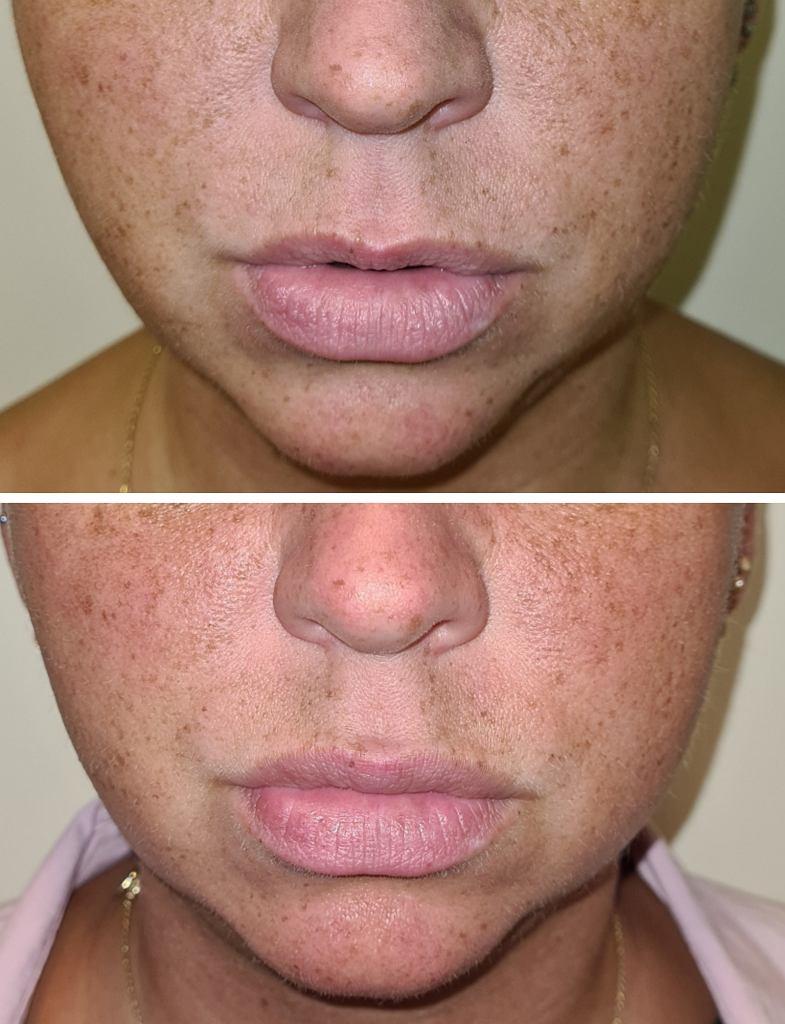 Efekt pracy doktor Molskiej: pacjentka przed i po delikatnym wypełnieniu górnej wargi kwasem hialuronowym celem zmniejszenia dysproporcji między wargą górną i dolną - ma naturalnie dużą dolną wargę