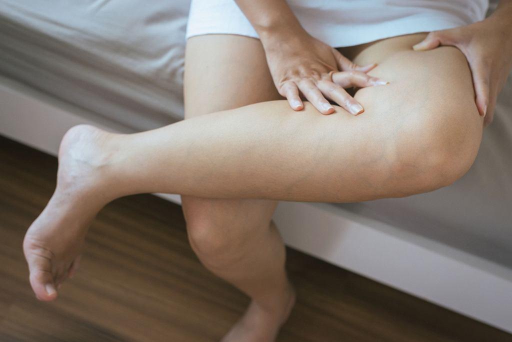 Zakrzepica żył głębokich jest chorobą żył, która przejawia się powstawaniem zakrzepu w żyłach głębokich, najczęściej kończyn dolnych (w przypadku kończyn górnych występuje znacznie rzadziej)