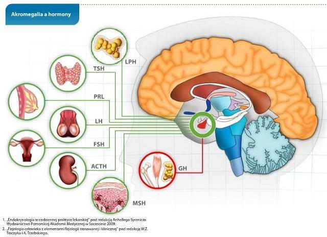 Akromegalia a hormony