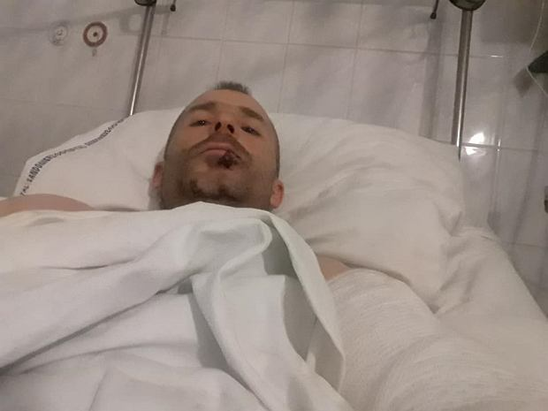 Tragiczny wypadek polskiego motocyklisty. Grozi mu amputacja nogi