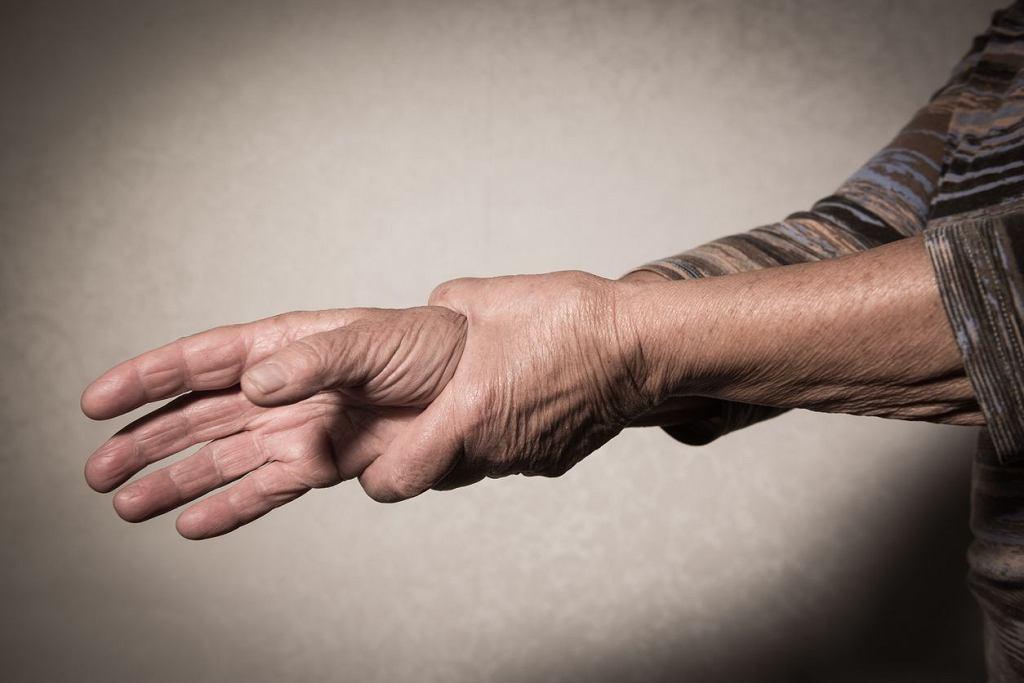 Osteoartropatia przerostowa w pierwszej kolejności zmienia wygląd palców i paznokci. Wtórna postać bywa objawem lub zapowiedzią wielu groźnych schorzeń