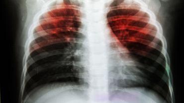 RTG klatki piersiowej. Obraz nieprawidłowy (gruźlica)