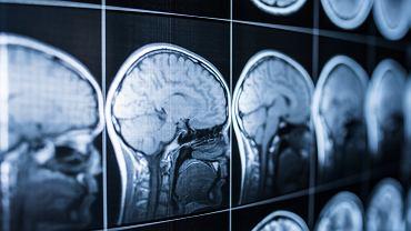 Bez względu na to, jak bardzo uzasadniony jest nasz stres, kiedy mózg postrzega sytuację jako zagrożenie, zawsze uruchamia ten sam proces (fot. Shutterstock)