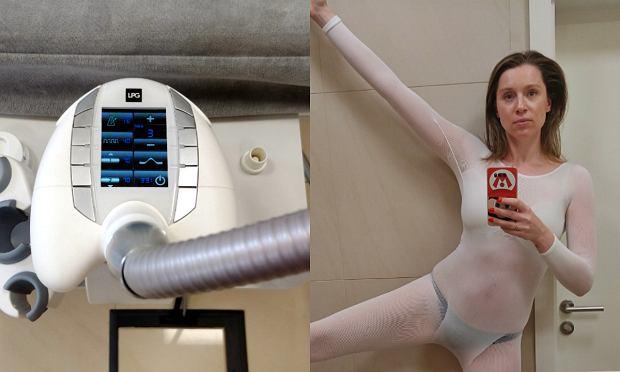 Urządzenie do endermologii oraz strój, w którym wykonuje się masaż