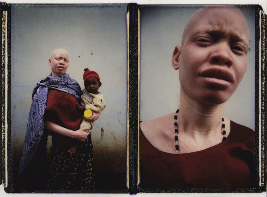 Afryka nie akceptuje 'fałszywego białego człowieka'. Polowanie na albinosów rozprzestrzenia się na 30 innych krajów