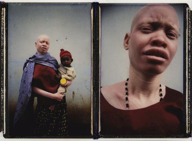 """Afryka nie akceptuje """"fałszywego białego człowieka"""". Polowanie na albinosów rozprzestrzenia się na 30 krajów"""