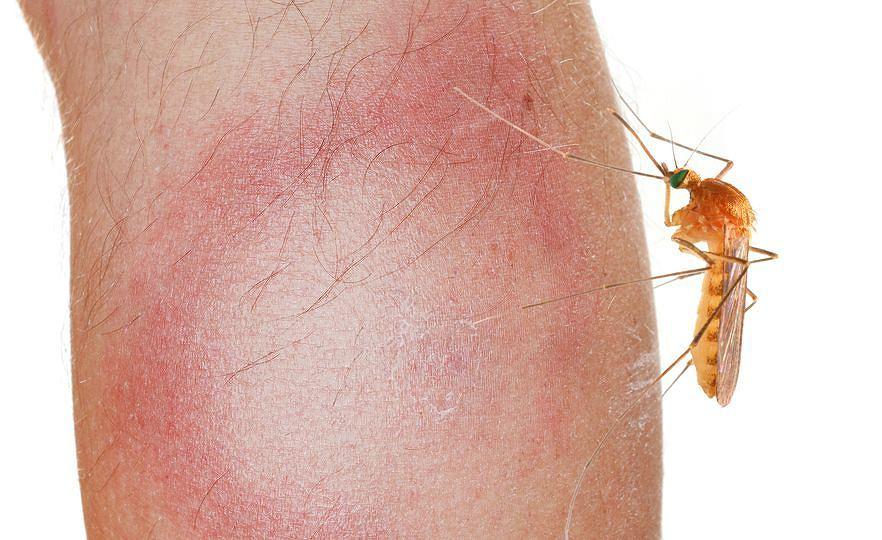 Nasze czy już obce? Nietypowe ślady po ugryzieniach komara raczej nie muszą mieć związku z bytnością obcych gatunków