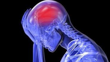 Ból głowy może być spowodowany infekcją, zmęczeniem czy brakiem snu. Jednak wyjątkowo silny może świadczyć o pęknięciu zabójczego tętniaka
