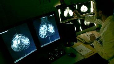 Pracownia Mammografii Cyfrowej