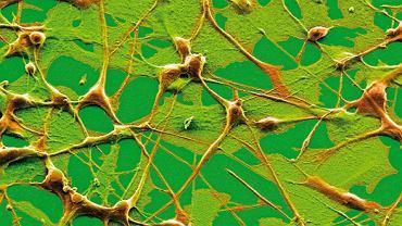 Czerniak złośliwy. Zdjęcie pod mikroskopem elektronowym pokazujące przenoszenie się czerniaka skórnego, nowotworu, który atakuje melanocyty wchodzące w skład skóry