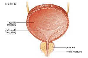 nocne erekcje z zapaleniem prostaty