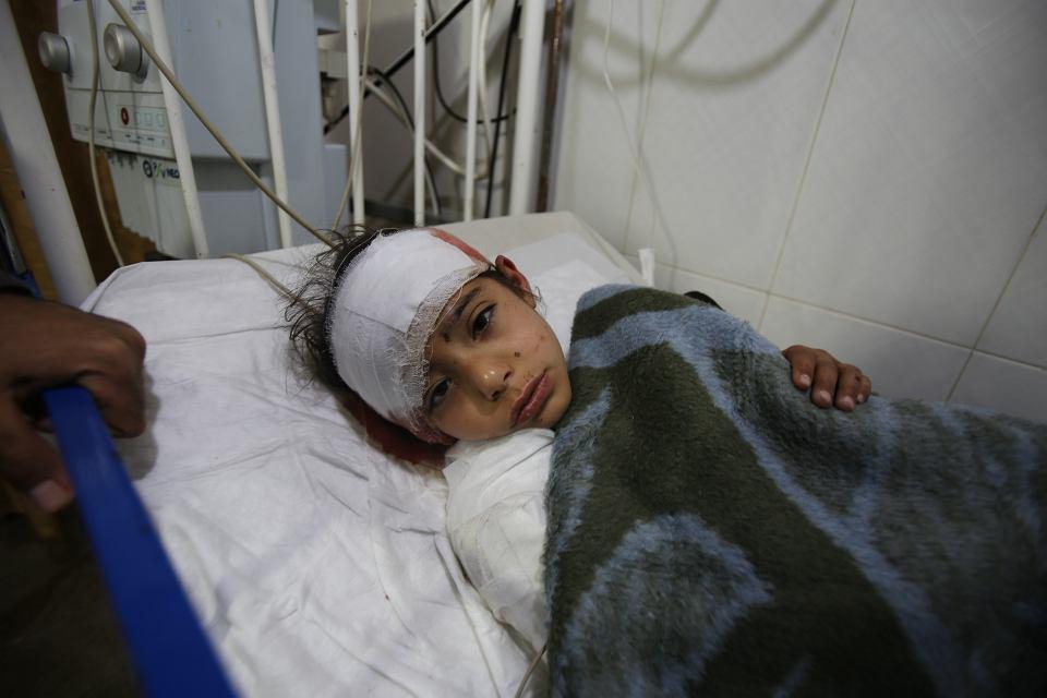 Hasna Katran, sześcioletnia Syryjka w szpitalu, 24 lutego 2019.