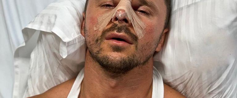 Qczaj zrobił operację plastyczną nosa! Pokazał zdjęcie tuż po zabiegu