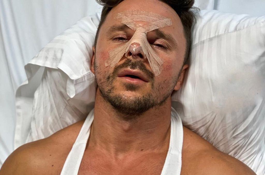 Qczaj po operacji plastycznej nosa