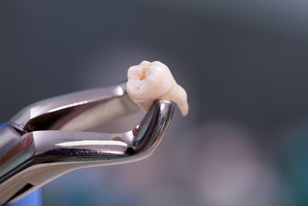 Sennik: ząb. Zdjęcie ilustracyjne