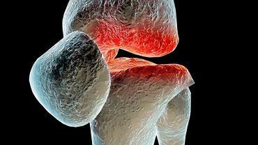 Grupa schorzeń nazywana układowymi chorobami tkanki łącznej charakteryzują stopniowym zanikaniem włókien kolagenowych