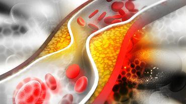 Hipercholesterolemia rodzinna oznacza podwyższony poziom cholesterolu we krwi i znacznie częściej rozwija się u osób obciążonych chorobą niedokrwienną serca lub cukrzycy