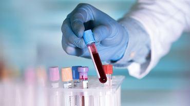 Grupa krwi a COVID-19