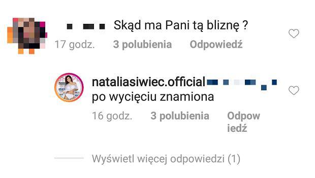 Natalia Siwiec ma bliznę