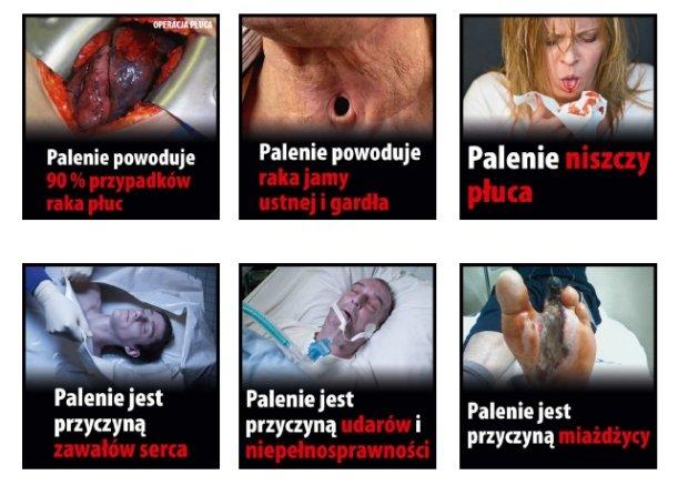 Zdjęcia ostrzegające przed skutkami palenia, zestaw 1